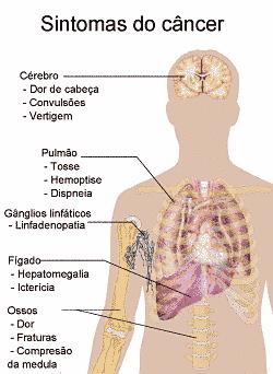 Sintomas do câncer